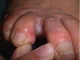 趾間型のイメージ