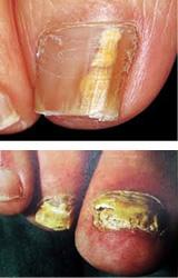 爪白癬のイメージ