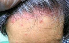 尋常性乾癬による頭部の皮疹