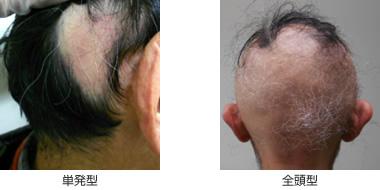 円形脱毛症のイメージ
